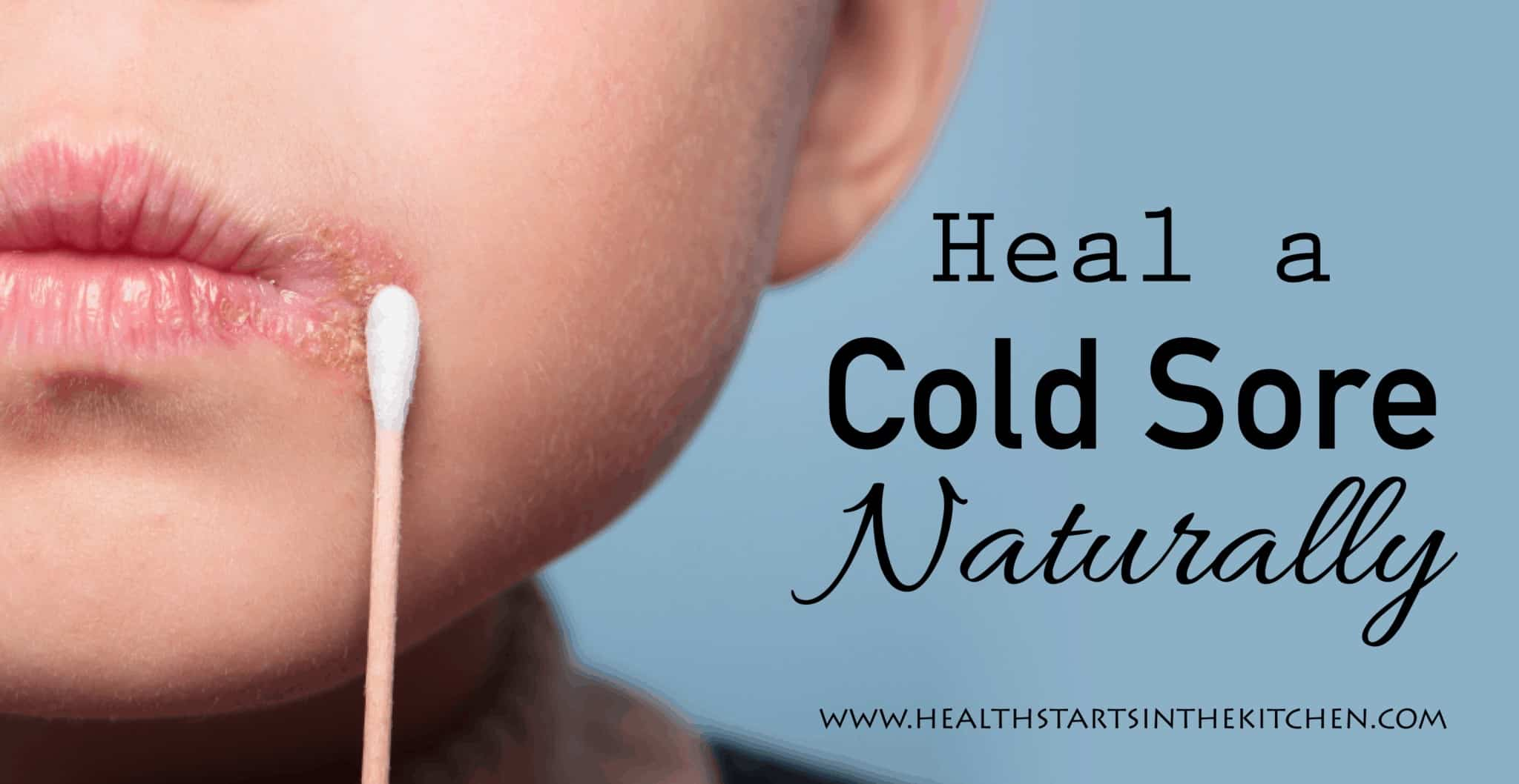 How to heal a cold sore naturally